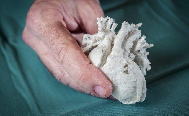 Pediatric Heart, 3d printed