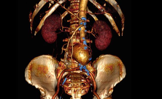 Abdominal aortic surgery