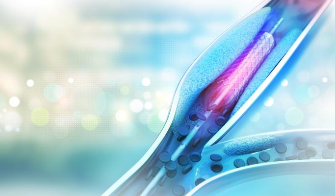 Coronary Revascularization in NSTEMI Mortality