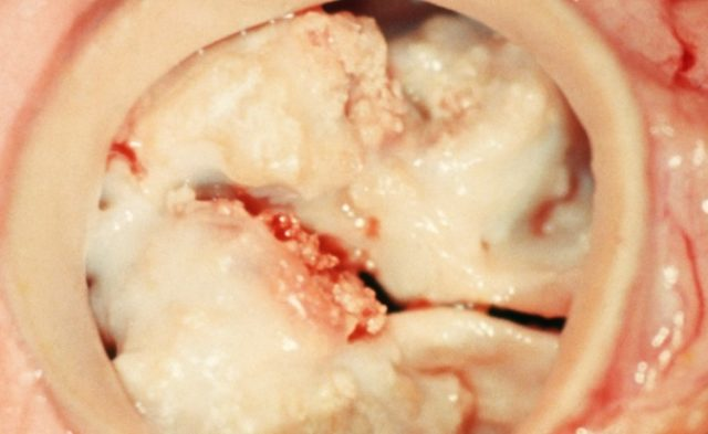 Bicuspid Aortic Valve Stenosis With CT Imaging