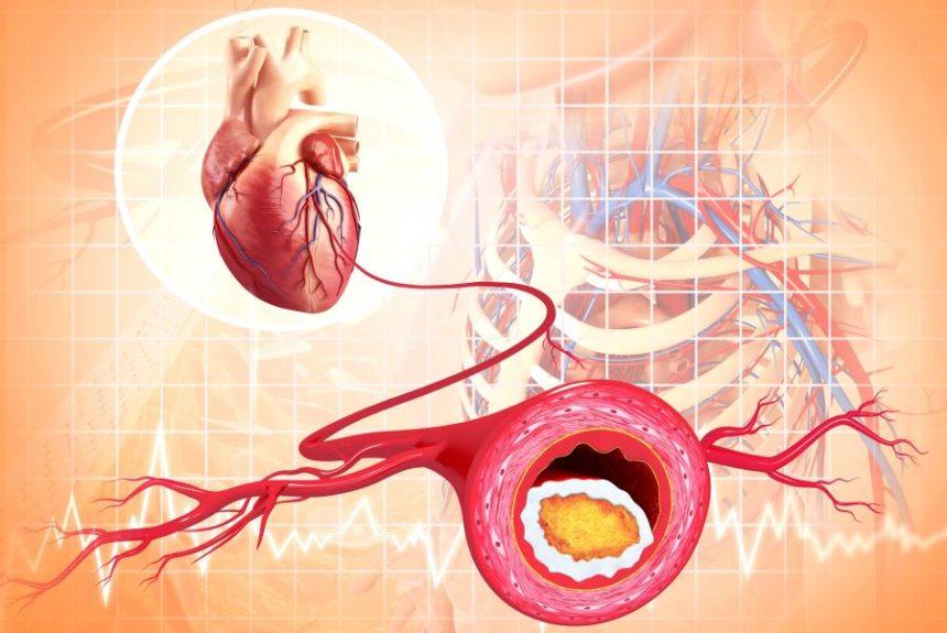 Atherosclerosis, heart
