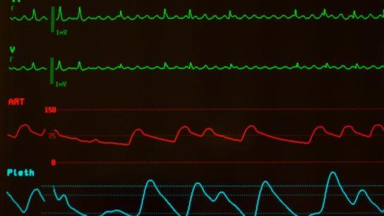 Atrial fibrillation, arrhythmia, ECG