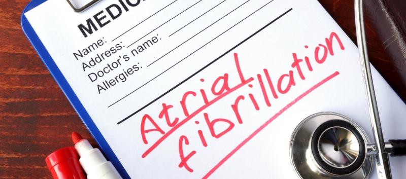 atrial fibrillation diagnosis