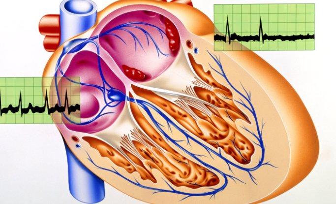 ACC AHA Atrial Fibrillation Flutter Guidelines
