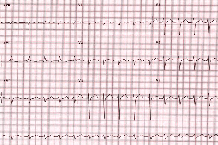 atrial tachycardia