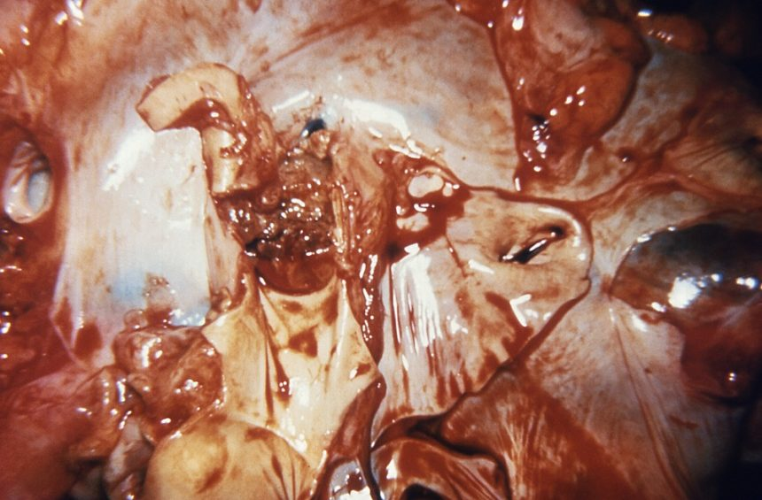 blockage of the right pulmonary artery in a case of bacterial endocarditis