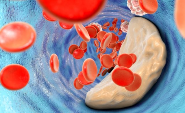 CAC Increases Ischemic Risks PCI