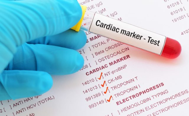 Cardiac Marker Blood test tube