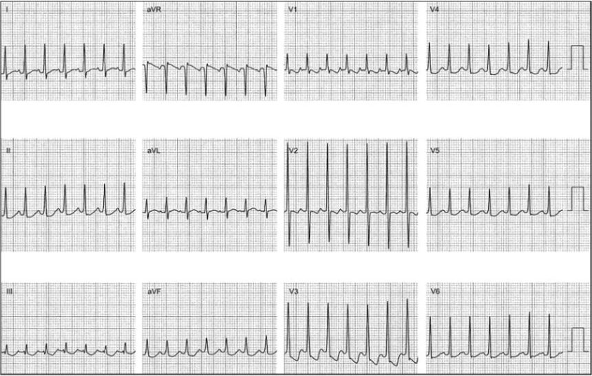 Atrial Tachycardia: Diagnosis and Treatment - The Cardiology Advisor