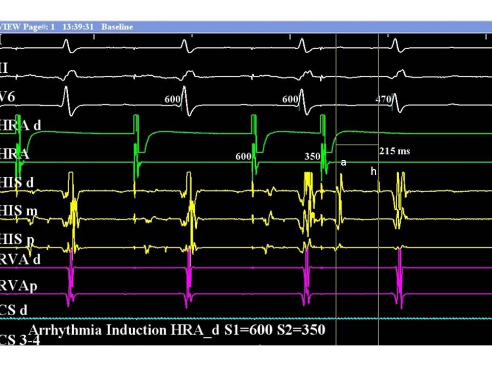 Av Nodal Reentrant Tachycardia Diagnosis And Treatment The Cardiology Advisor