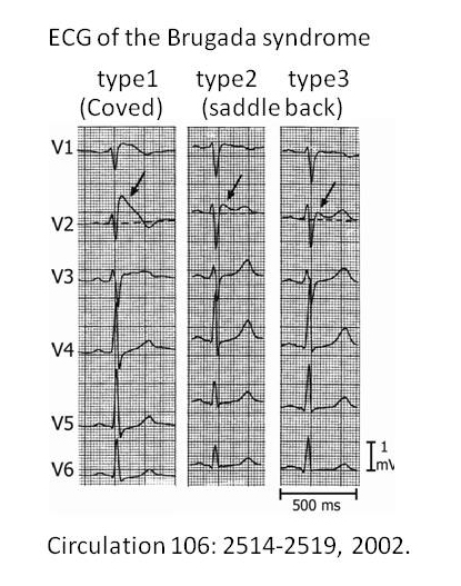 Brugada Syndrome - The Cardiology Advisor