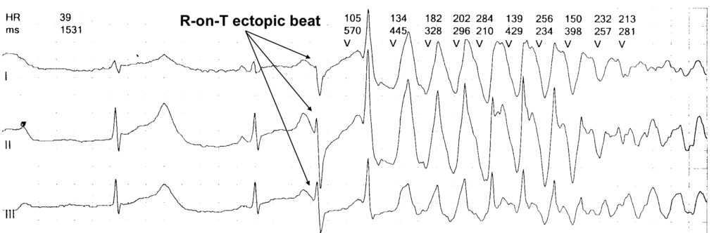 Long QT Syndromes and Torsade de Pointes - The Cardiology