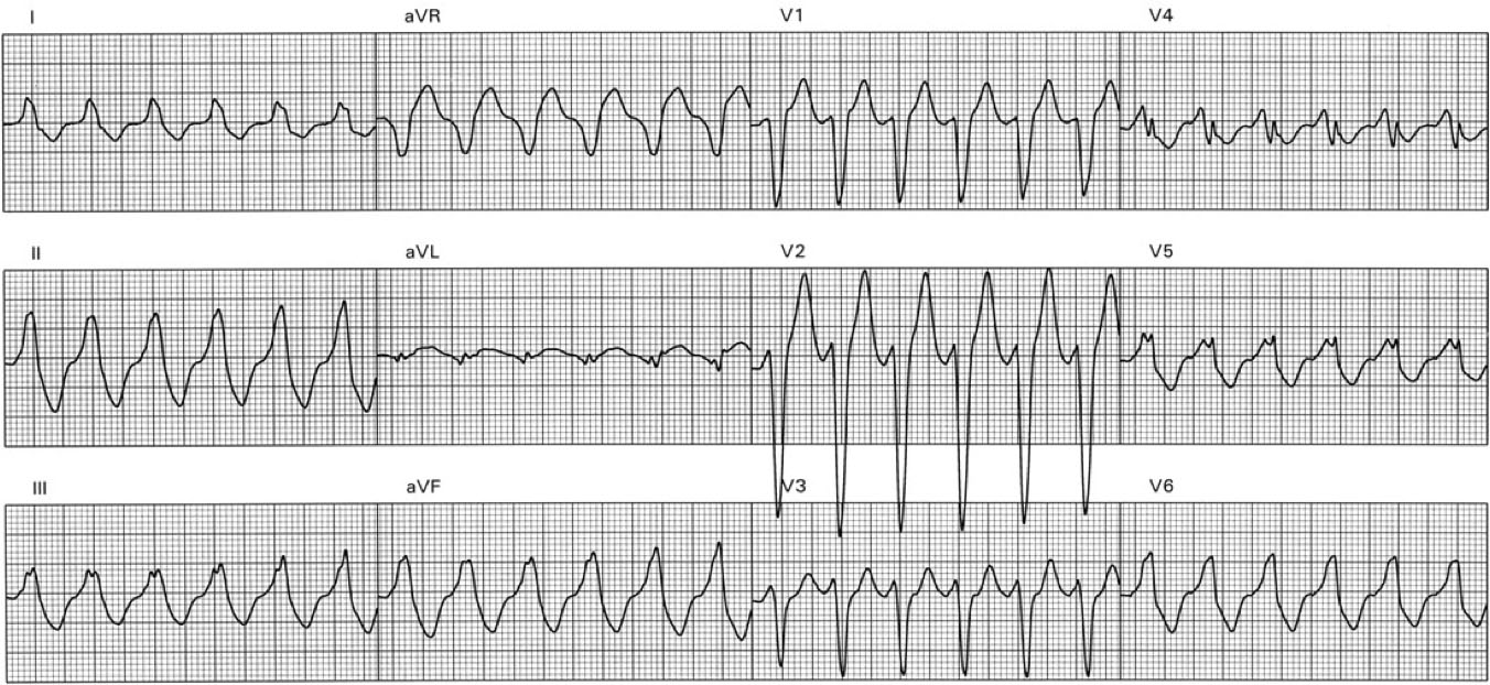 Ventricular Tachycardia with No Structural Heart Disease