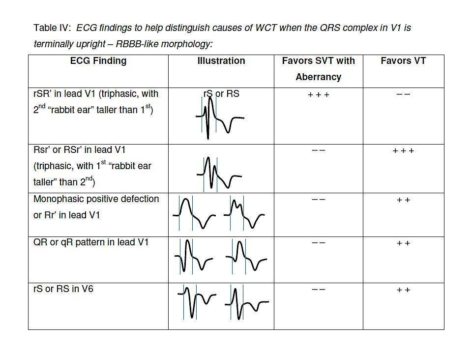 Differential Diagnosis of Wide QRS Complex Tachycardias - The