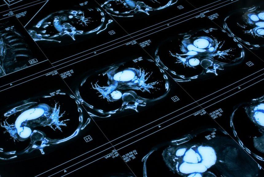Chest tomogram, tomography