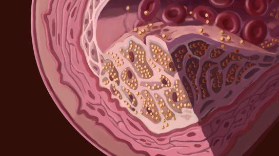 Cholesterol build up