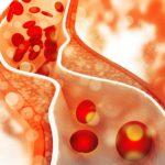 Cholesterol plaque, ACS