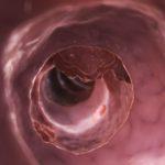 Colerectal cancer, colon