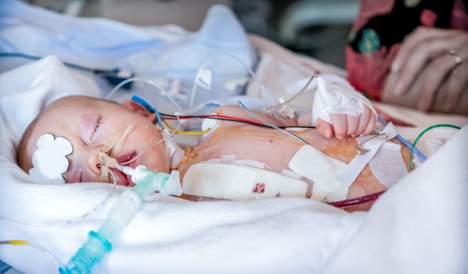 Congenital Heart Disease Surgery Infant