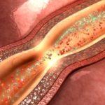 Coronary Artery Disease Psoriatic Arthritis