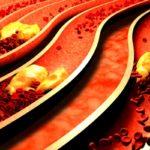 Coronary Autonomic Function in Diabetes