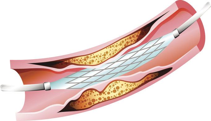 Drug-eluting stent