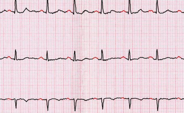 electrocardiogram with afib