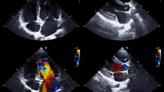 Echocardiograph