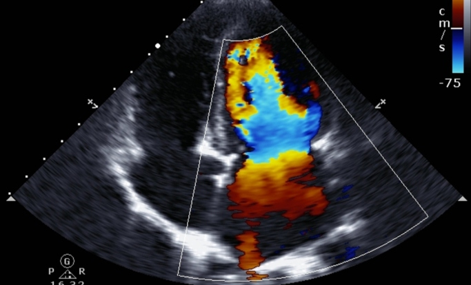 Echocardiography Underused in the United States Despite
