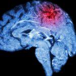 transient ischemic stroke