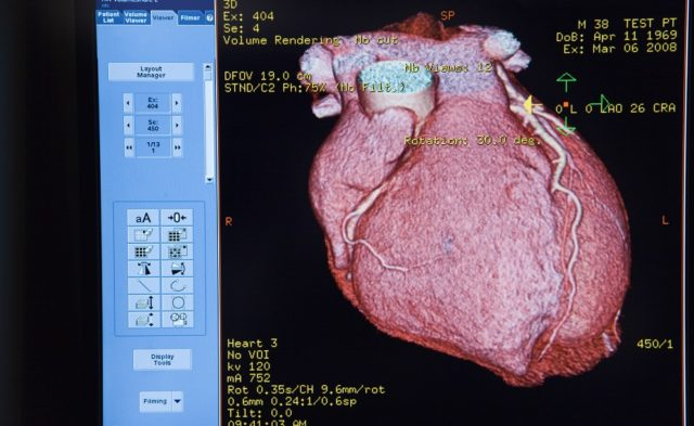 CAT scan of a heart