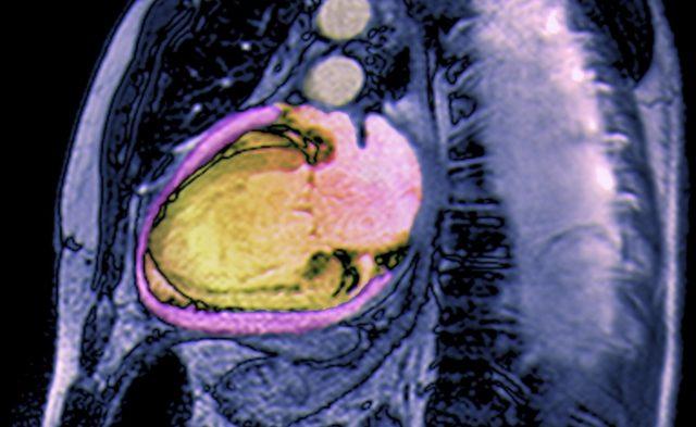 Heart failure, dilated cardiomyopathy