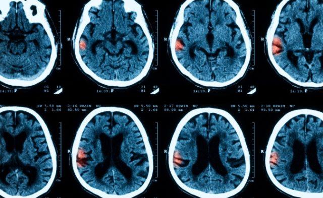 Intracranial Hemorrhage SSRI Risk