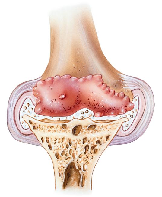 Knee - Advanced Osteoarthritis