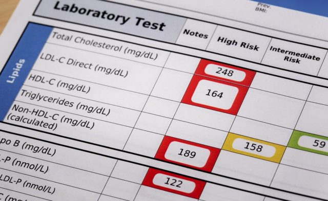 high risk cholesterol lab test
