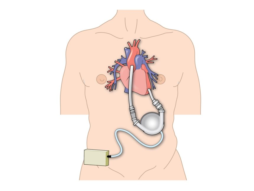 Left Ventricular Assist Device, Interventional