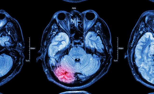 MRI, brain injury