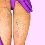 Peripheral artery disease, leg veins, leg examination