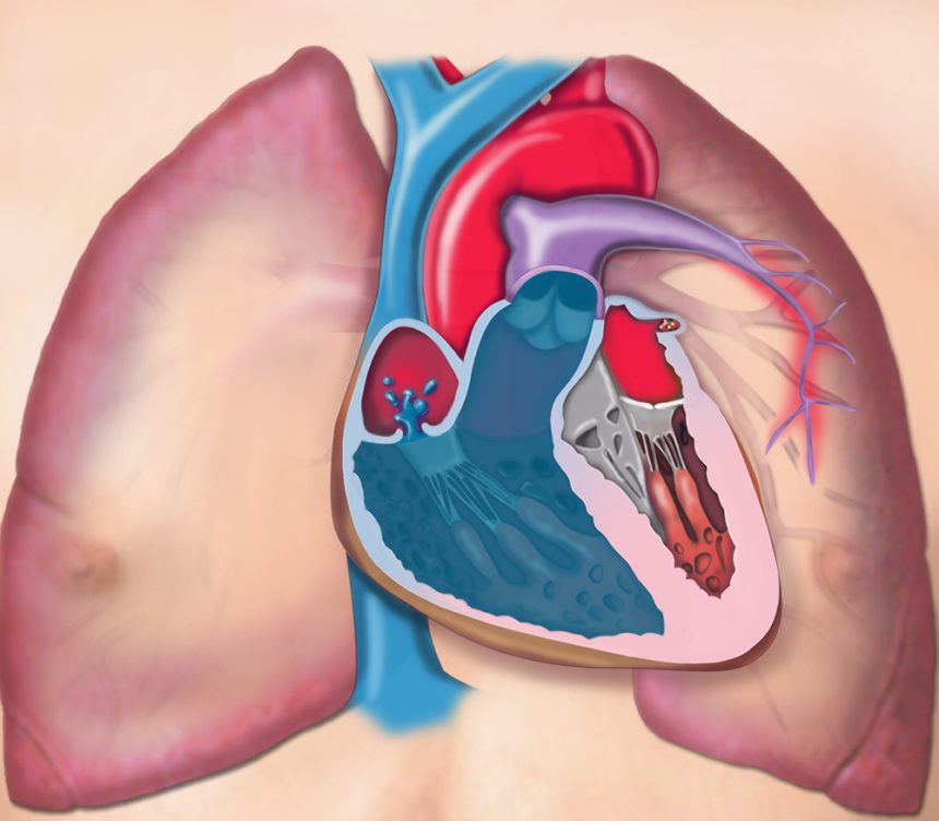 Pulmonary Hypertension Chest Illustration