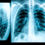 Chest X-Ray of Lungs.