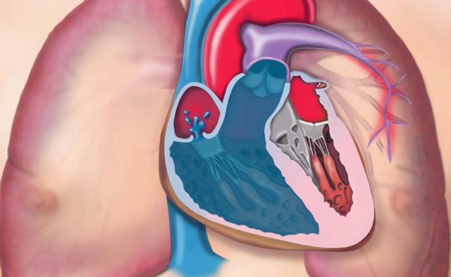 pulmonary hypertension PAH PH