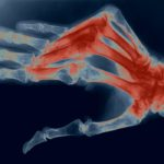 colorized xray of ight hand with RA