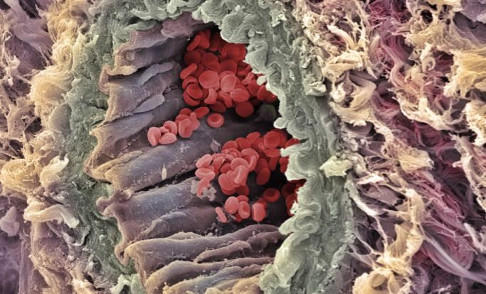 Red Blood Cells in Artery