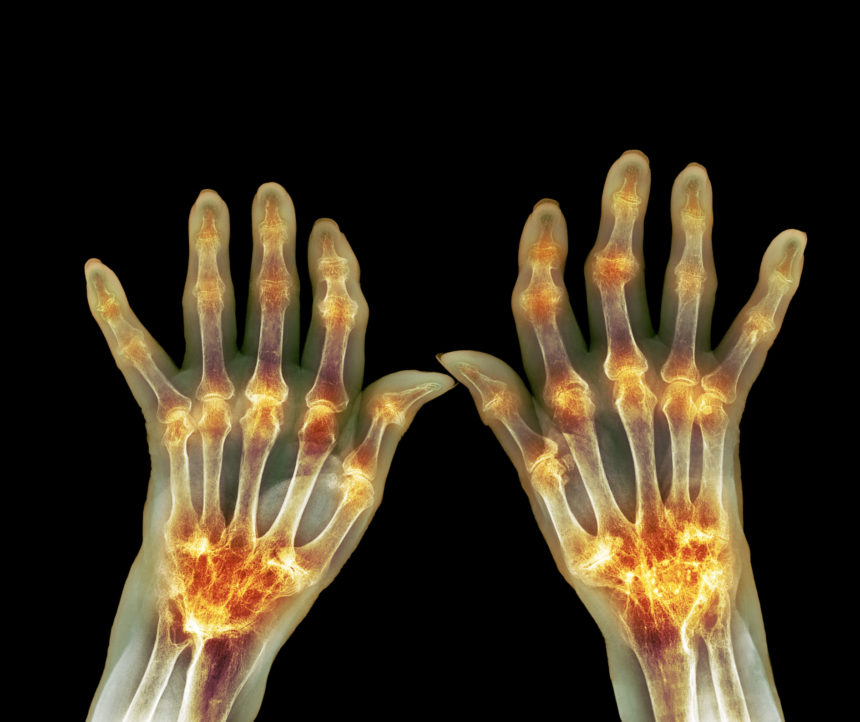 An X-Ray of rheumatoid arthritis
