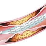FDA-intravascular-device-coating_2_1115