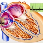 AF treatment hinges on the frequency and severity of symptoms, presence of comorbidities, and whether any underlying causes of AF are identifiable. Treatments include pharmacotherapies, medical or surgical interventions, and lifestyle changes, depending on treatment goals. Most commonly, treatment focuses on controlling heart rate or rhythm while reducing the risk of blood clots.[9] Pharmacotherapies for AF include beta blockers, calcium channel blockers, antiarrhythmics, and anticoagulants. A 2013 AHRQ (Agency for Healthcare Research and Quality) review comparing rate vs rhythm control strategies found comparable efficacy between the 2 in all-cause mortality, cardiovascular mortality, stroke, and bleeding events; however, rate-control strategies were associated with fewer cardiovascular hospitalizations and fewer adverse events.[9] A review from 2015 suggests all patients should receive rate control, with the need for maintenance of sinus rhythm determined on an individual patient basis.[10]