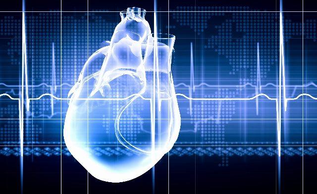 STEMI heart attack_TS_459277671