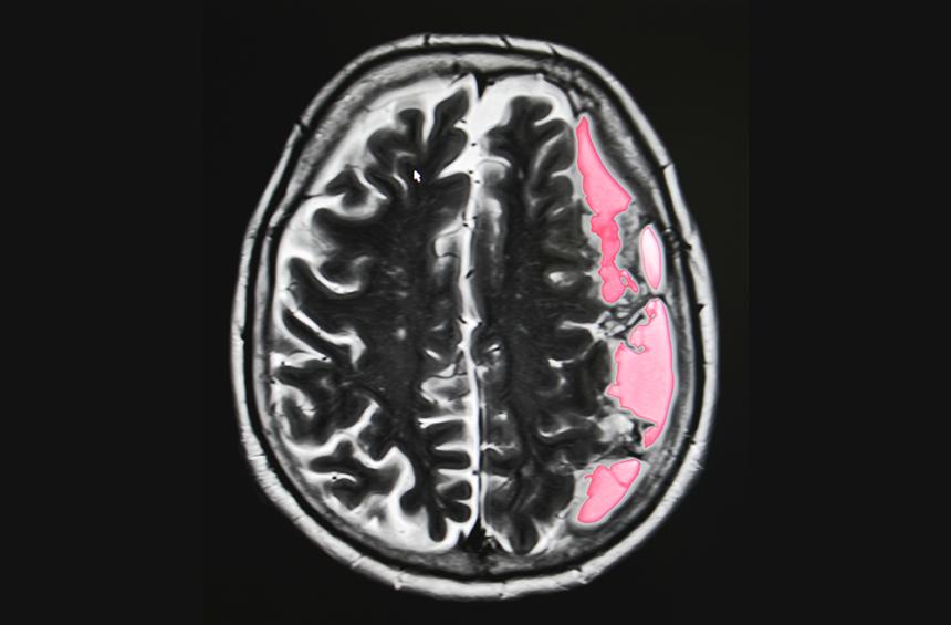 Stroke, brain damage