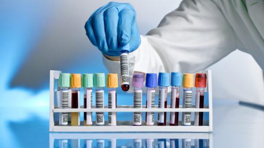 vial blood test lab