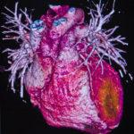 heart cardiovascular disease CVD cardiac